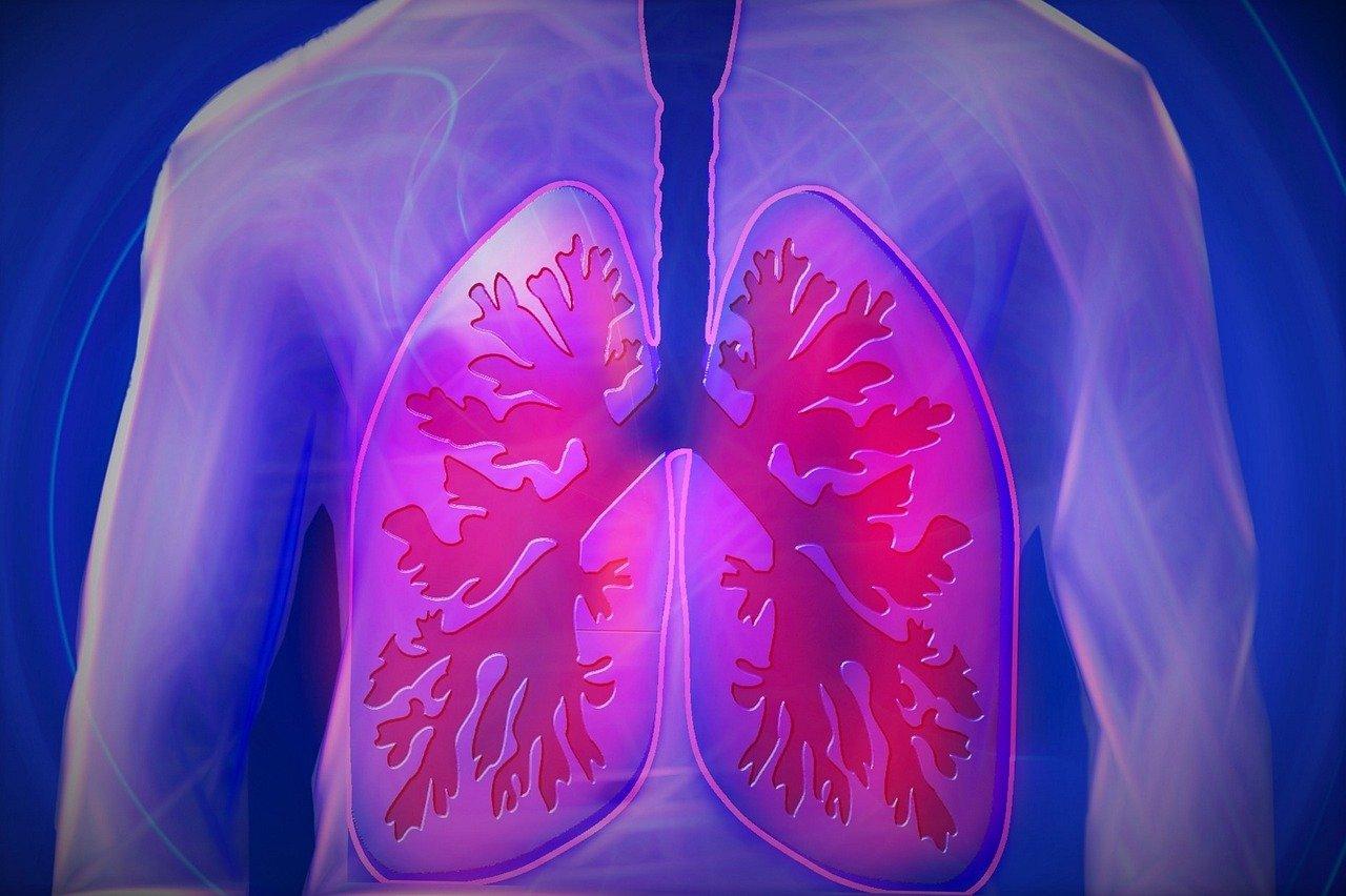 Lungenkrebs Erkennung